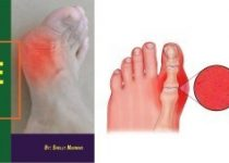 The End Of Gout book cover